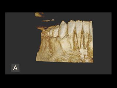 使用事例:歯周疾患