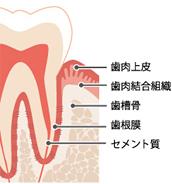 歯周病は歯の周りの組織の病気です