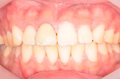 歯肉の腫れは治ります