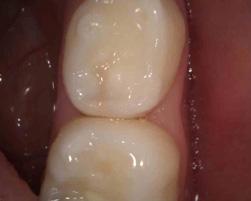 虫歯がどこにあるかわかりますか?