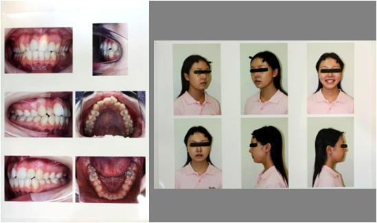 お口とお顔の写真