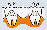 歯が1本抜けた場合 (ブリッジ治療)