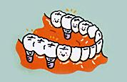 複数歯のインプラント治療