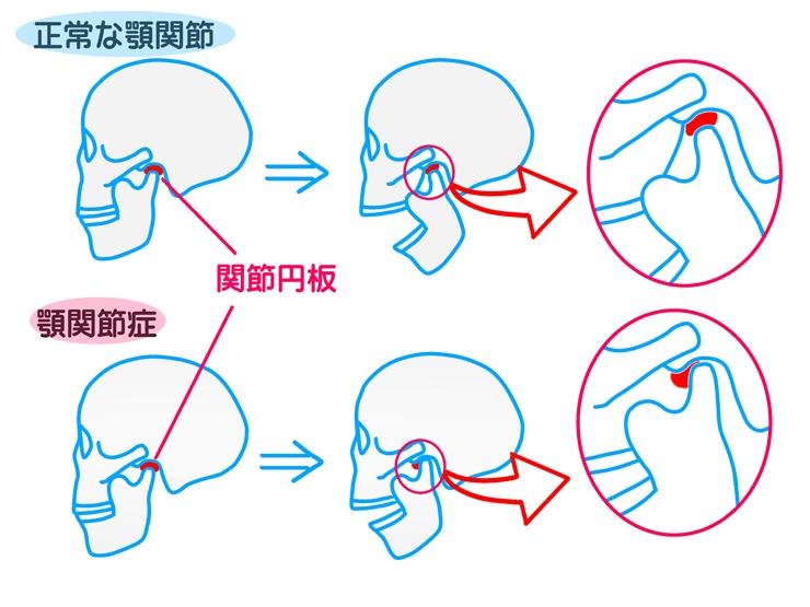 顎関節症・咬み合わせについて