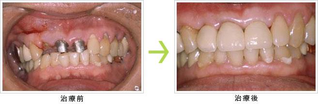 前歯の差し歯が外れてインプラントを希望