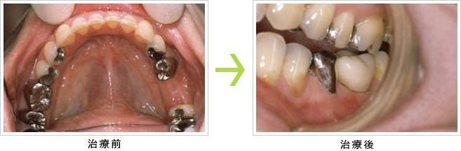 長期間放置し奥歯がなくなりインプラントを希望